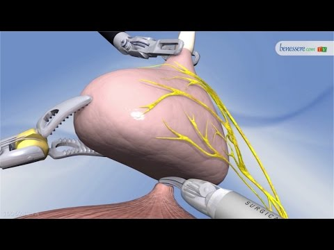 Video brachiterapia prostatica