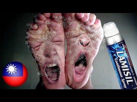 Anti-fungal paa cream