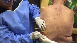 Massive smelly pus filled abscess drained live