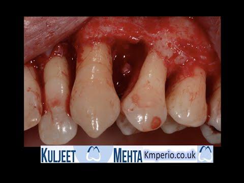 Gum disease treatment Part 2-Periodontal Surgery