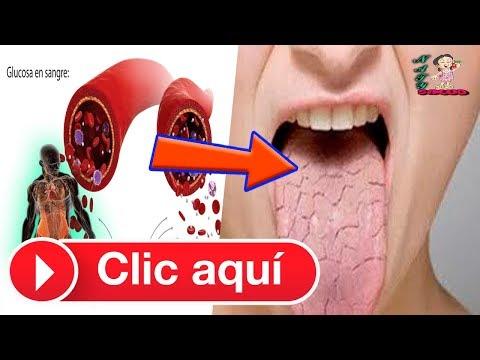 Como el jengibre reduce el azúcar en la sangre