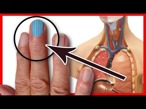 Gribok der Nägel der Vergleich der Präparate