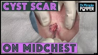 A Cyst Scar - Multiloculations on Midchest