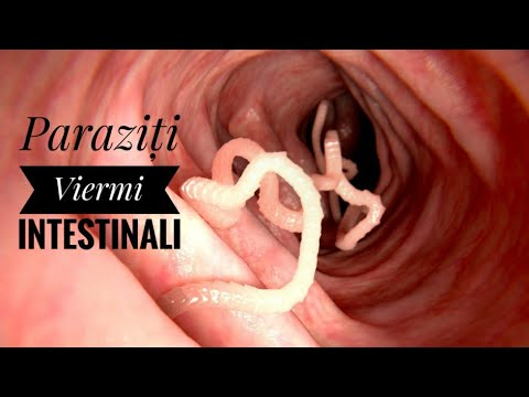 Peritoneal cancer meaning