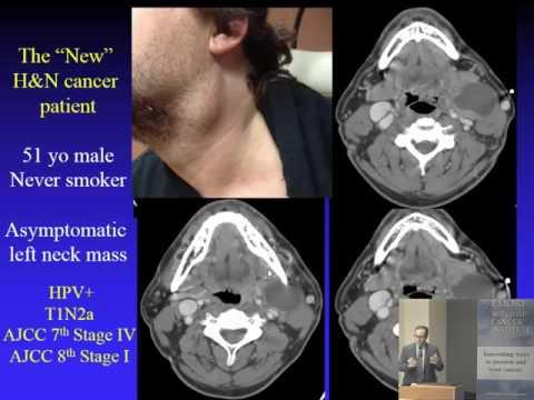 Cancer col uterin se poate vindeca
