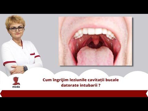 Articulația umflată și dureroasă pe degetul arătător