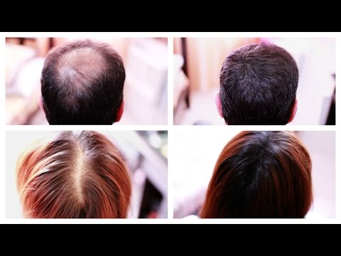 Vlcc hair oil