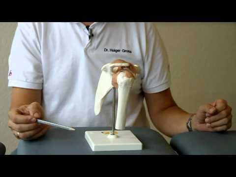 Joint giperfleksiya