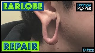 Earlobe Repair After Significant Stretching: Pt.1