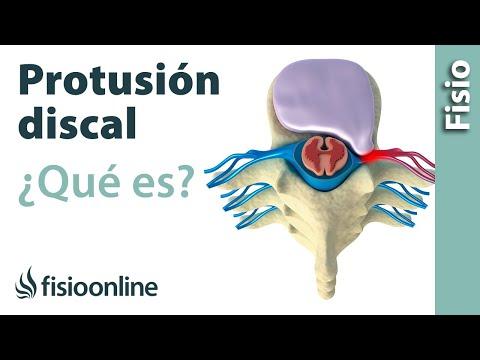 Dolor de espalda, y dolor durante la micción y la temperatura