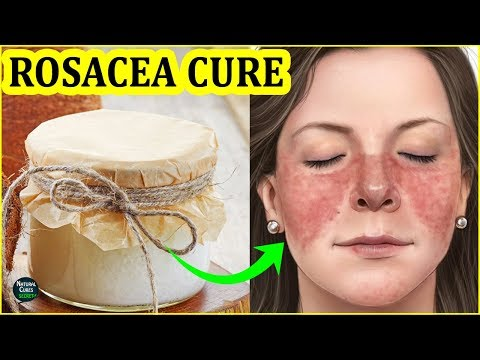 How To Get Rid of Rosacea Naturally | Rosacea Treatment at Home