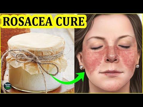 Succo di kalanchoe da eczema