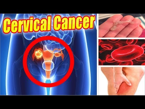 6 Warning Signs of Cervical Cancer You Must Know #NaturalRemedies