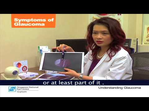 Glaucoma Symptoms and Stages