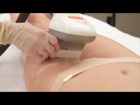 VELA SHAPE аппаратный лимфодренажный массаж