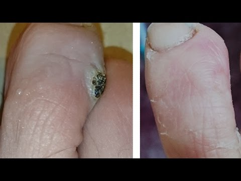 Pinworm ciszta