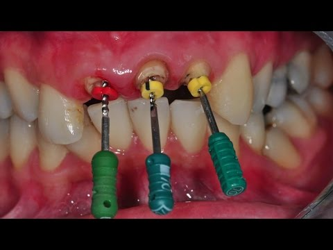 Root canal Treatment - Oral health - Keep Smiling