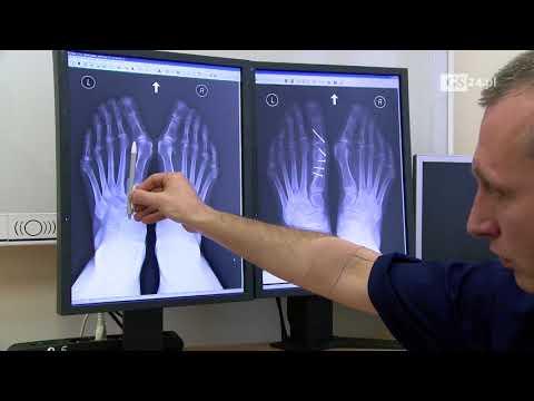 Kości ból dużego palca u mężczyzn
