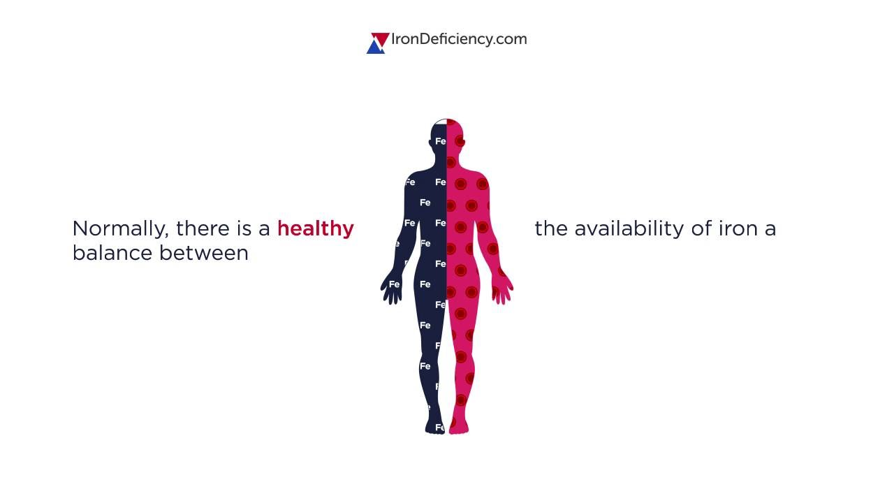 What is iron deficiency and iron deficiency anaemia? Video Thumbnail