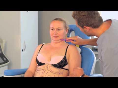 Убрать живот косметическими процедурами