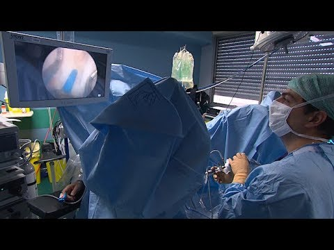 Krebsstatistiken Prostata in Russland