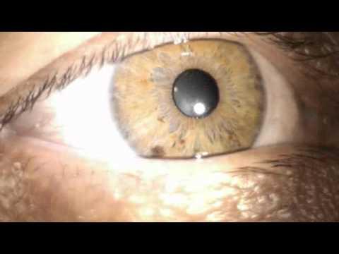 Esame visivo strisce glicemia