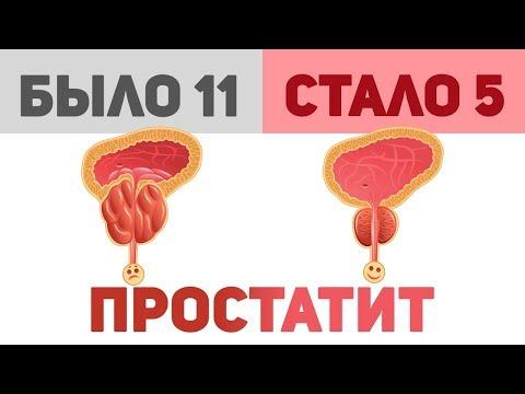 Операция аденомы простаты тур отзывы