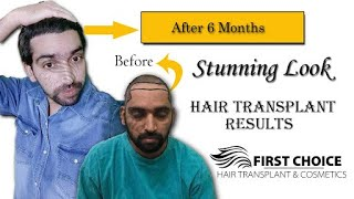 Patient From Gurdaspur Latest Hair Transplant Result | Best hair Transplant