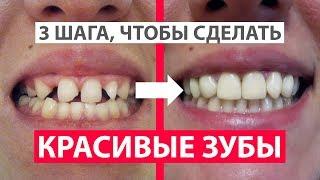 Как сделать красивые зубы? 3 шага. Брекеты и реставрация зубов. Цены