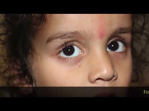 Molluscum Contagiosum in Child Cured by Transmission