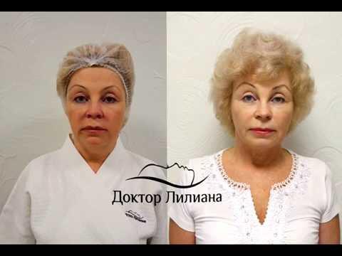 Глицерин маска для лица с желатином отзывы