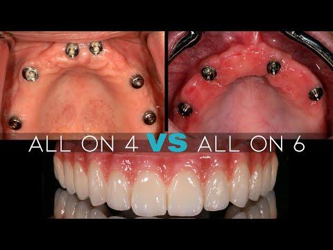 Should I Get 4 or 6 Dental Implants?