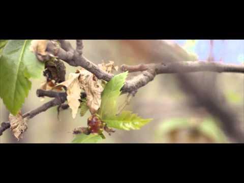 Spinalnaya lanesthésie à la varice variqueuse