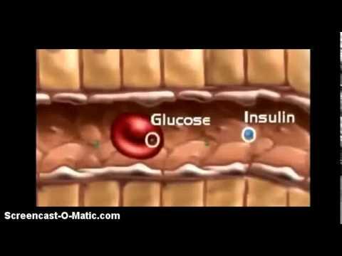 Tipo 2 diabetes anacardos
