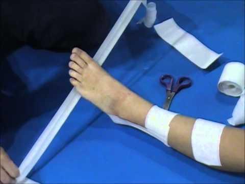 Tratarea scarlatină a artrozei