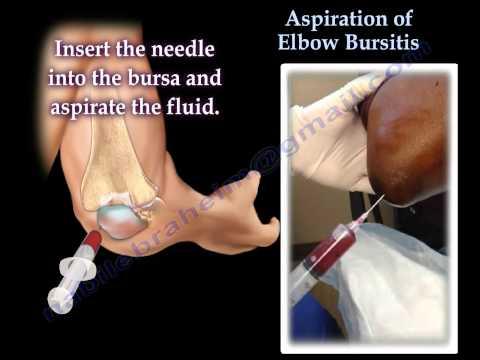 A térd belső oldalsó ínszalagjának enthesopathia kezelése