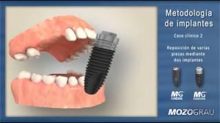 Colocación de implantes - Raúl Pascual Campanario