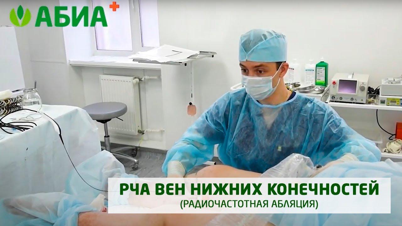 Операция РЧА
