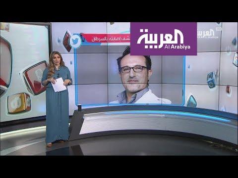 العرب اليوم - شاهد: الإعلامي شريف مدكور يرد على الشامتين في مرضه