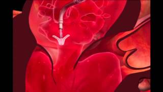 Mitraclip Transcatheter Mitral Valve Repair Procedure Animation