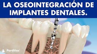 La osteointegración de los implantes dentales ©