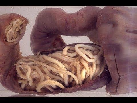 Симптомы паразитов глистов у человека