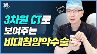 3차원 CT로 확인하는 비대칭 양악수술? 적나라하게 보여 드립니다!