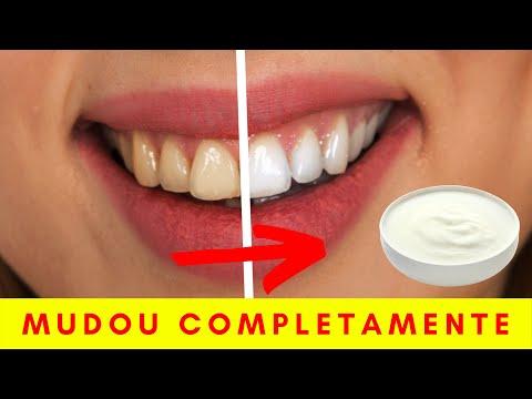 Coma esse alimento e veja o que acontece com os seus Dentes  - 7 Melhores Alimentos para os dentes