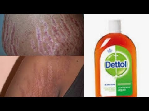 Download How To Rid Stretch Marks Video 3GP Mp4 FLV HD Mp3 Download