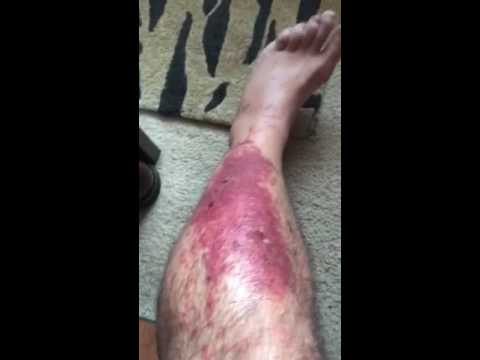 Video Poison Oak-Sumac Day 4 of Medical Treatment