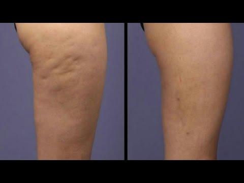 Como es posible adelgazar las caderas