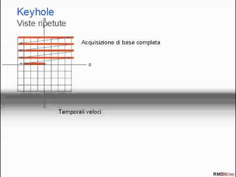 Complicazioni della colonna vertebrale toracica osteocondrosi
