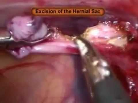 Laparoskopowa plastyka przepukliny pachwinowej