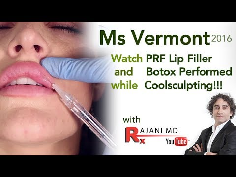 Filler Juvederm Lip Video